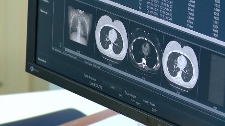 В Пензе пациентка поделилась впечатлениями от нового томографа